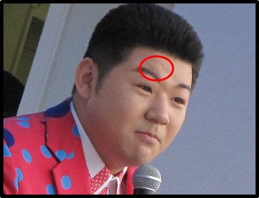 大江裕 からくり おねえ 右目 眉毛 傷 障害